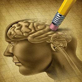 알츠하이머성 치매