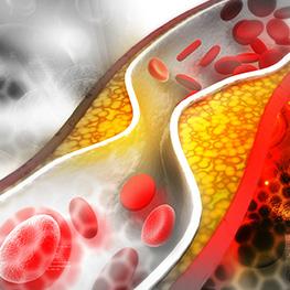 혈관성 치매